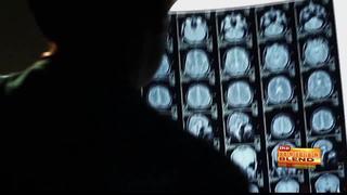 Multiple Sclerosis Mayo Clinic