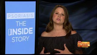 Scandal's Katie Lowes talks having Psoriasis