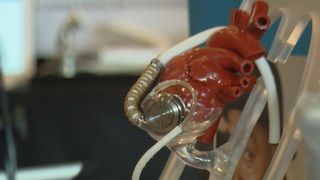 Transplant shortage means more with heart pumps