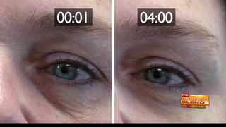 No more wrinkles or crows feet with Plexaderm