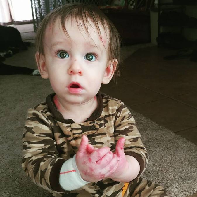 Arizona family raising awareness for son's rare, painful condition that causes s...