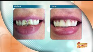 Brand new smiles with Mini Dental Implants
