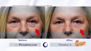 No more wrinkles with new cream Plexaderm