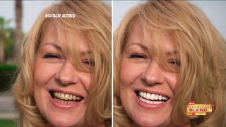 Get a whiter smile in just MINUTES