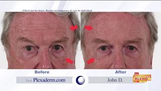 Plexaderm: A younger looking you in just minutes